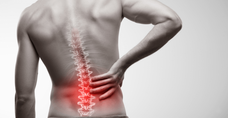 Sciatica, Sciatica: What Are My Treatment Options?