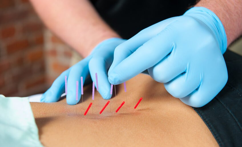 Dry Needling, What Is Dry Needling Good for? 6 Top Benefits